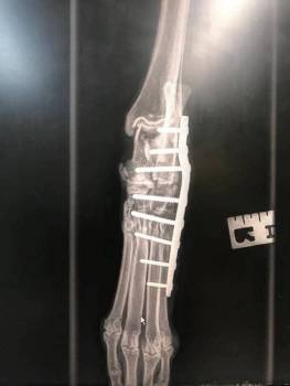 Jock's leg x-ray picture showing pins.